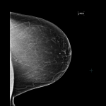 What Breast Density Means to You 1