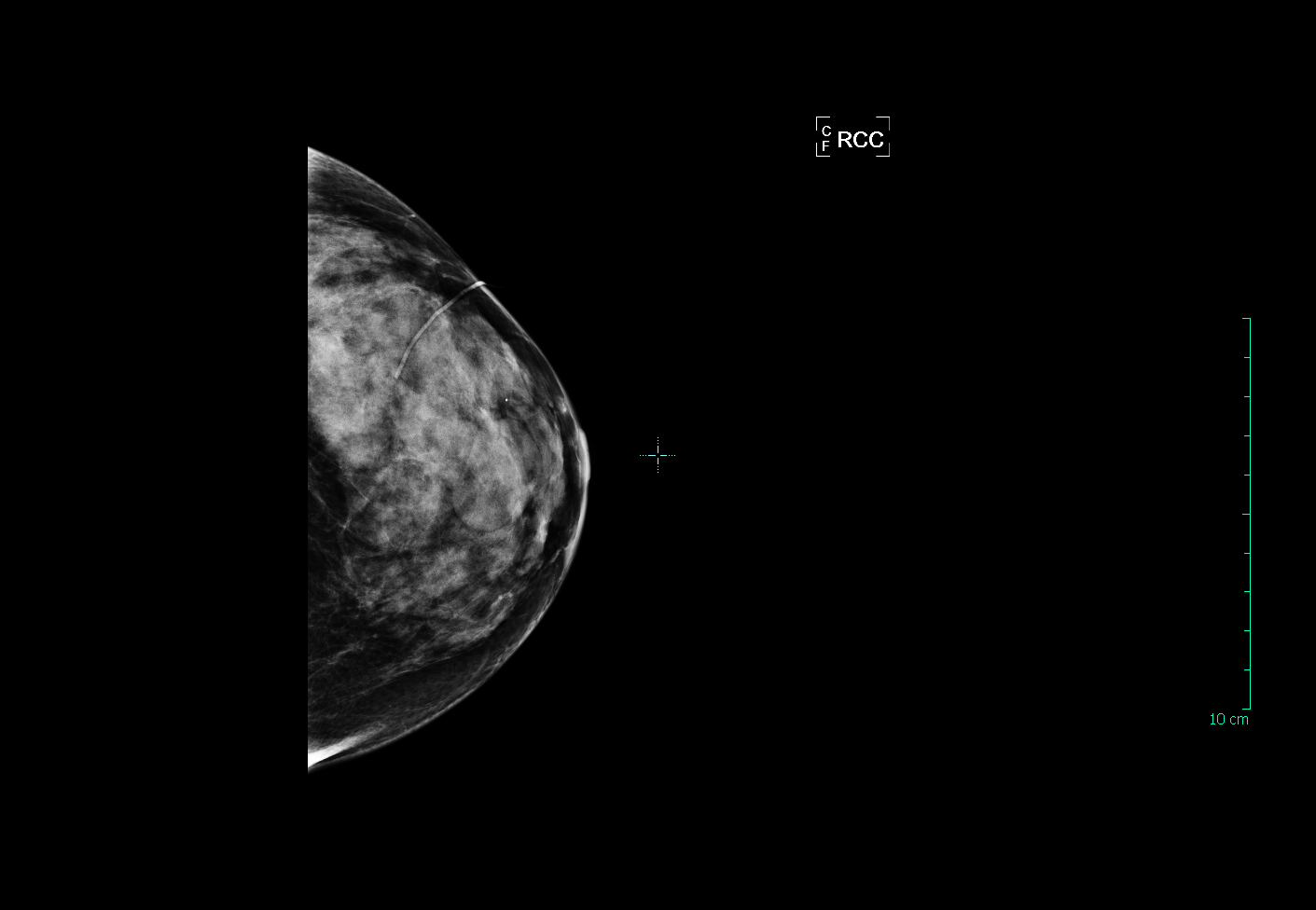 what breast density means to you stacey vitiello m d