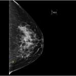 breast-post
