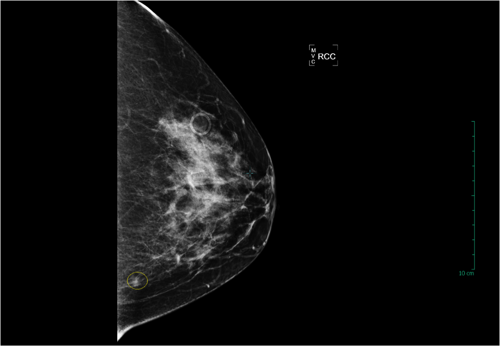 7 cm Invasive Ductal Carcinoma breast