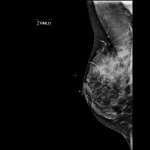 Montclair Breast Center Responds to Mammogram Controversy